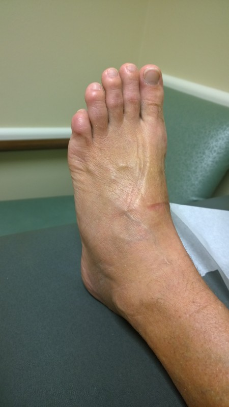 Swollen, gnarly foot.